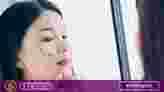 Skincare untuk Wajah Berjerawat
